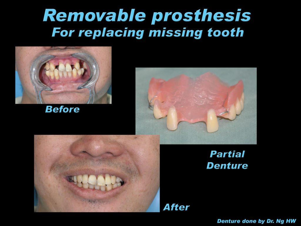 045-denture01