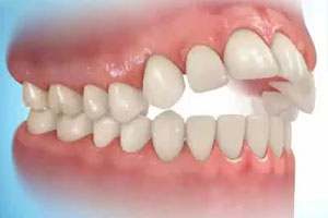 Anterior bite - A space between the upper and lower incisor