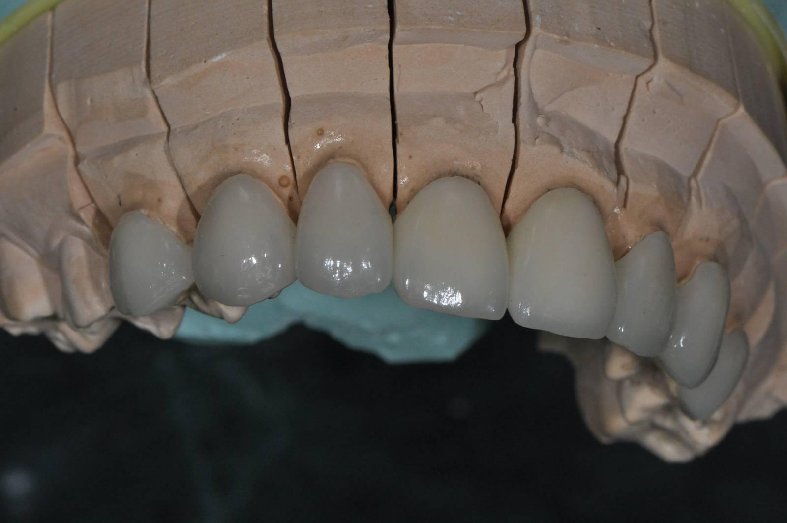 Crowns-veneers-Model01 [1600x1200]