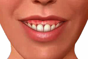 Gummy smile - alot of gum shown when smiling or at rest