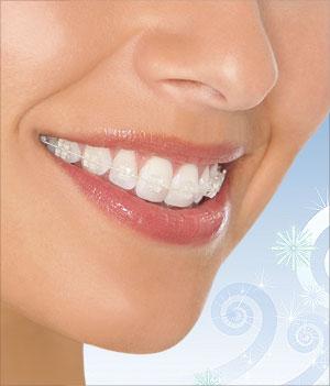 pure-braces