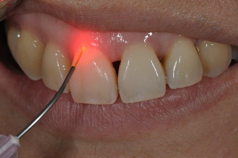 Laser is used in gum procedure