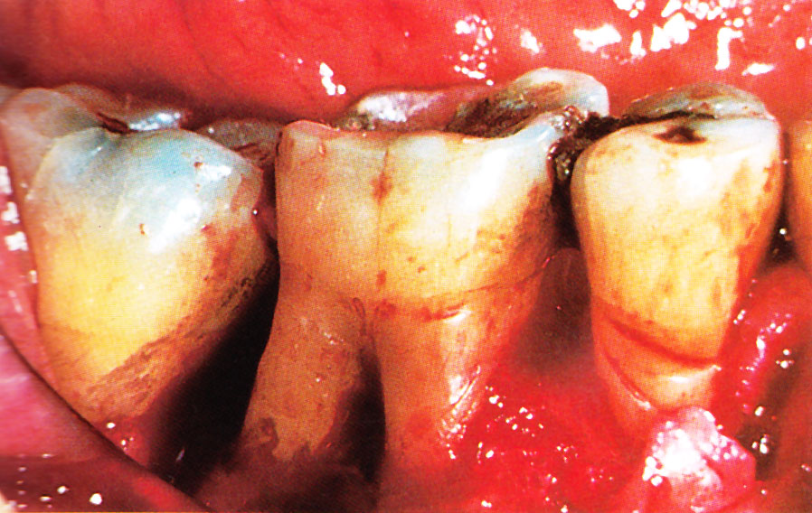 Advanced periodontitis. From Colour Atlas of Common Oral Disease