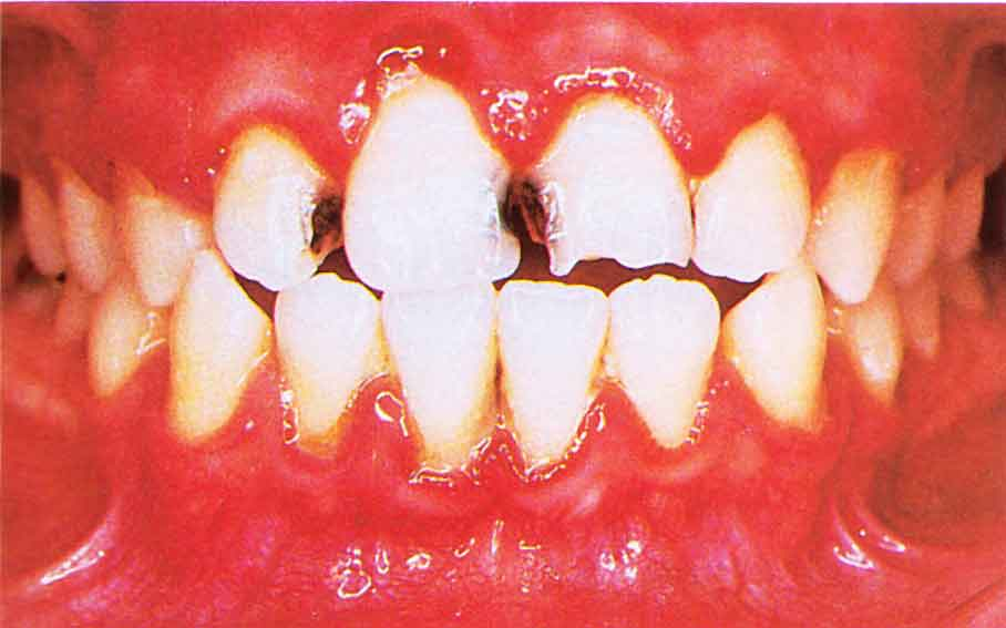 Gingivitis caused by mouth breathing. Source: Color Atlas of Common Oral Disease