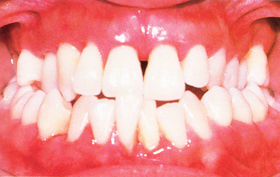 Mild periodontitis. From Colour Atlas of Common Oral Disease