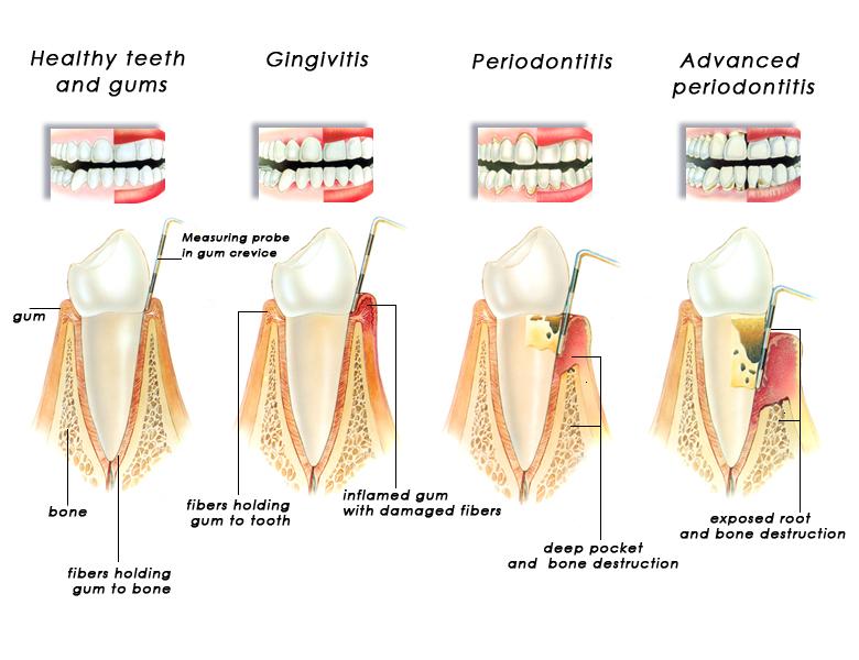 Sequela of gum disease
