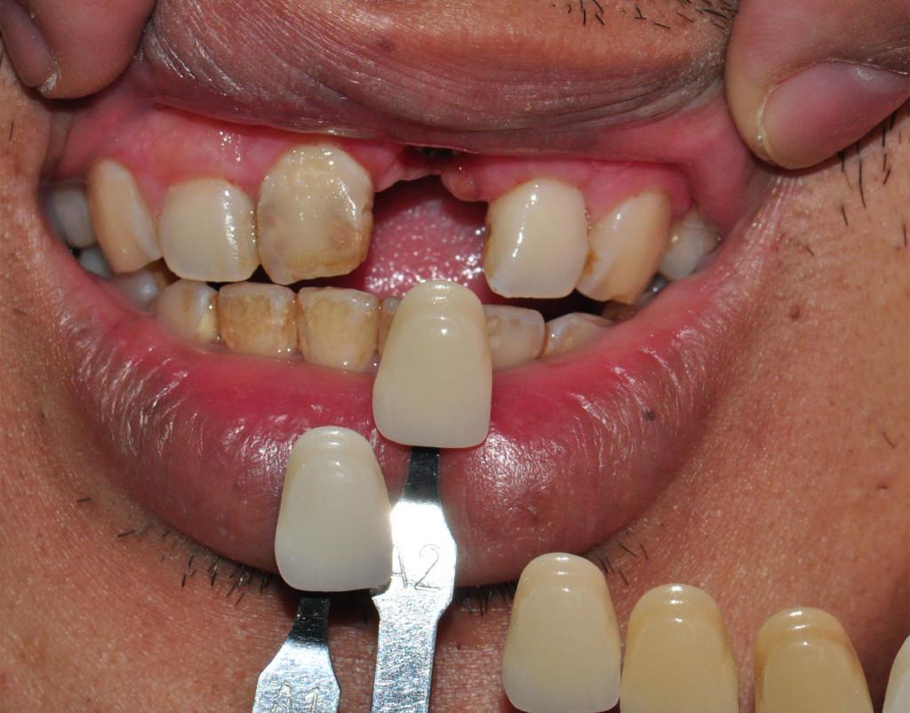 Implant12
