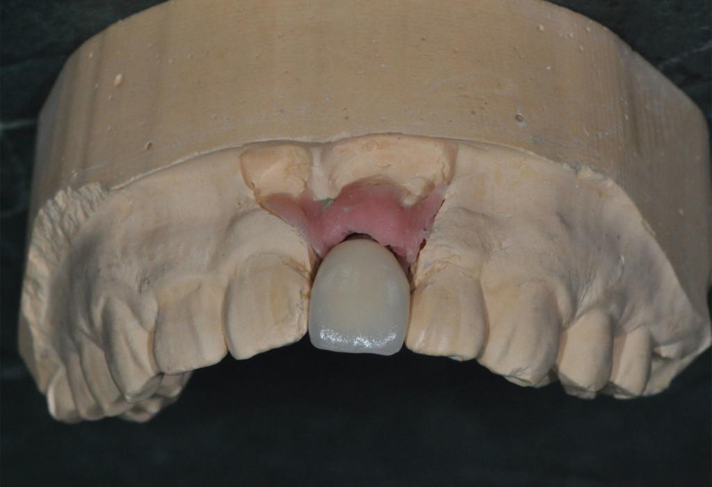 Implant13