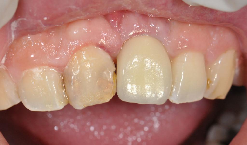 Implant21