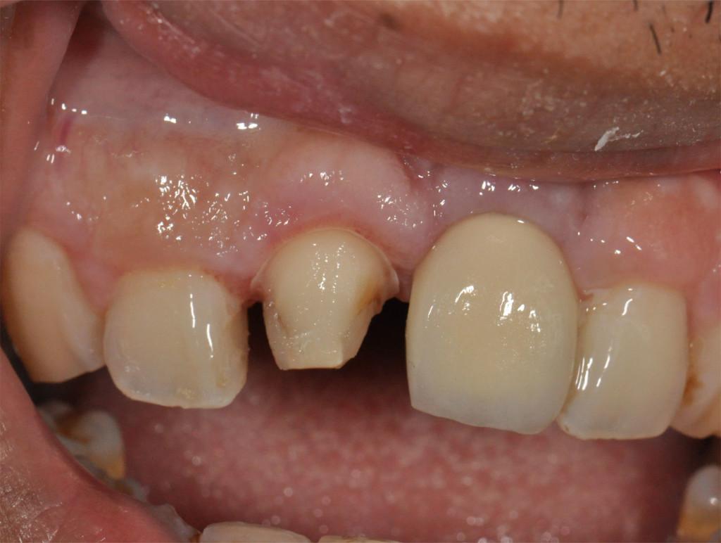 Implant22