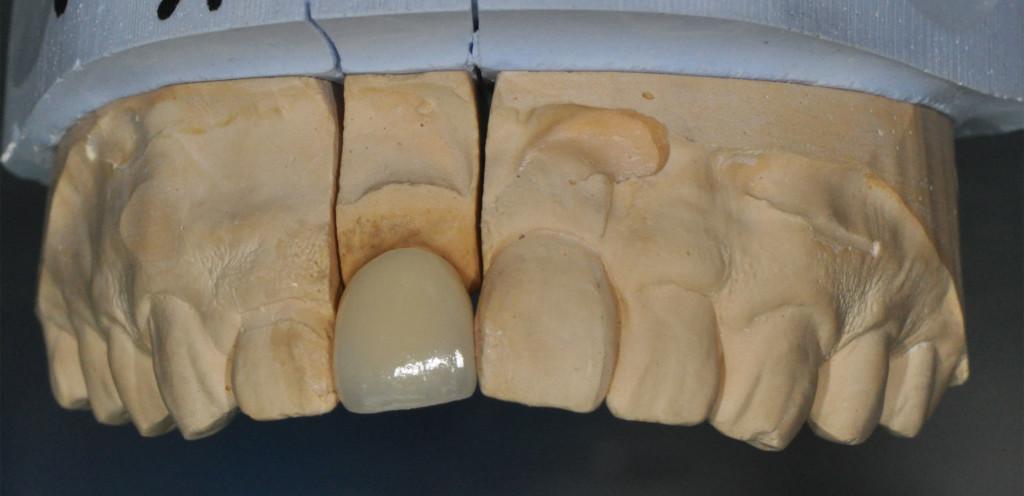 Implant23