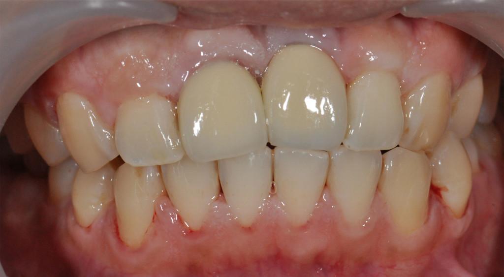 Implant25