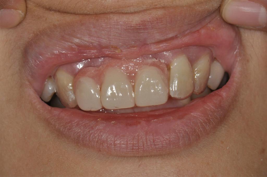 Denture03
