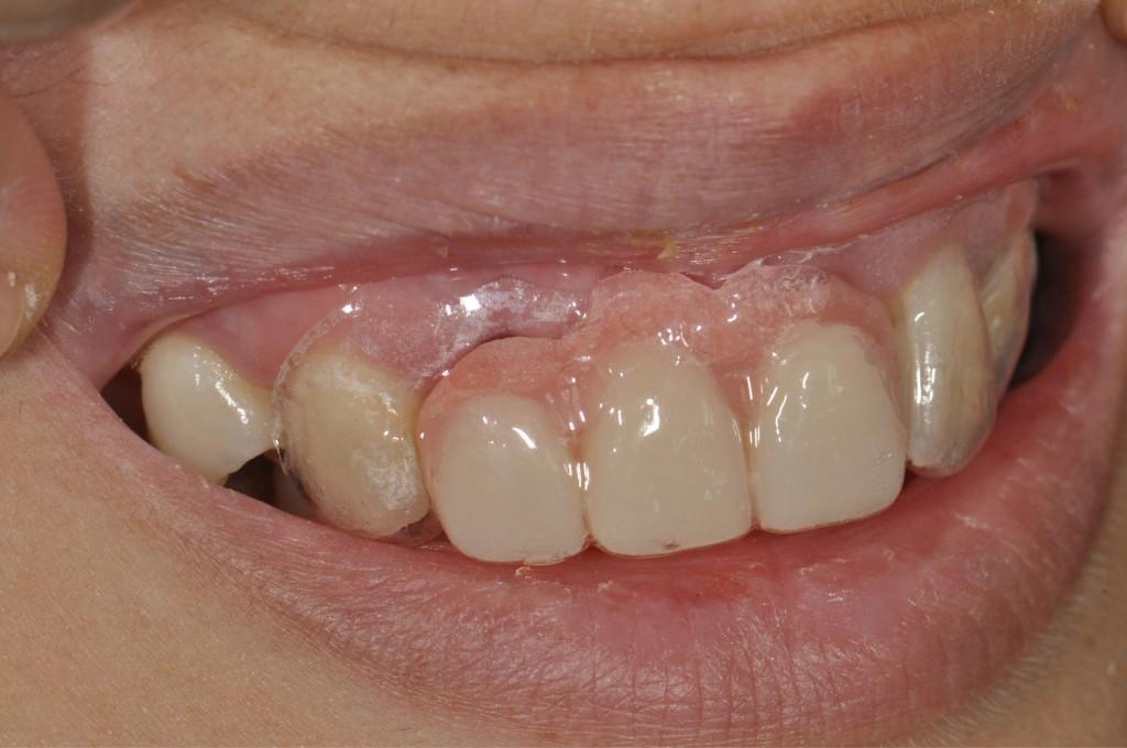 Denture04