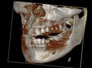 CBCT-3D-image